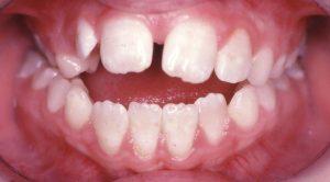 An anterior open bite