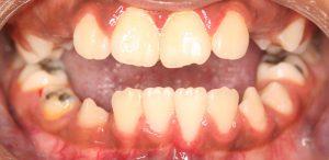 A bilateral open bite
