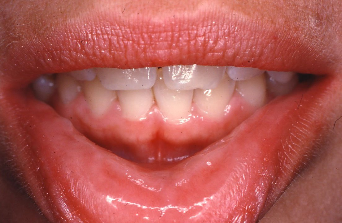 Lip ridges