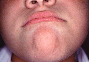 Lip habit stress