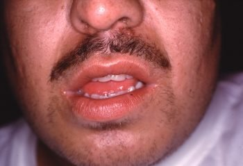 Unnattractive Lips